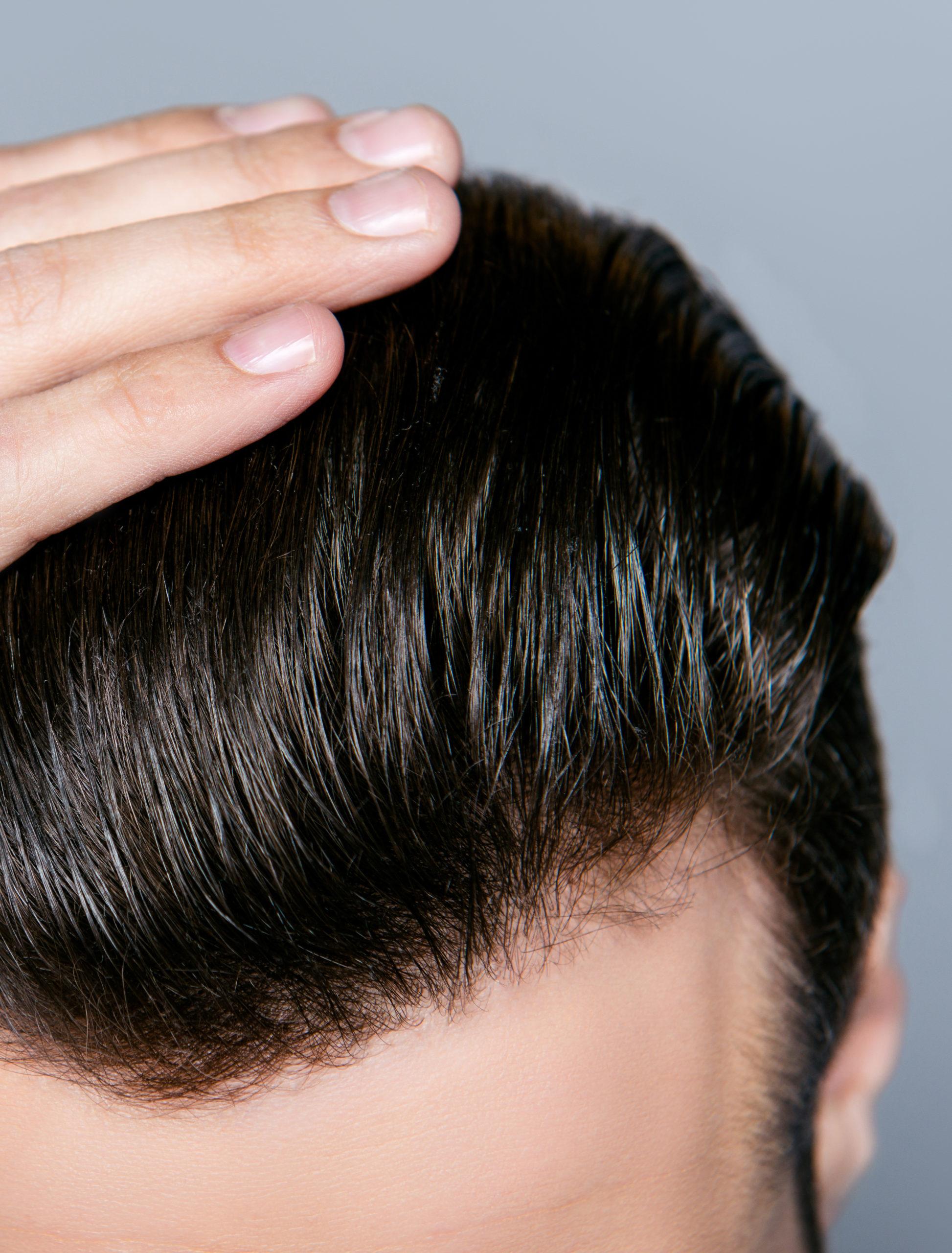 greffe de cheveux caen France